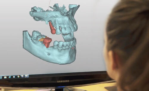 3D Implantatplanung in Sopron