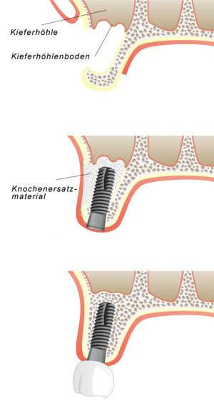 Kieferhöhlenboden Erhöherung Sinuslift Zahnbehandlung