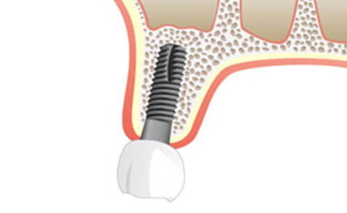 BEGO OSS Knochenaufbau Knochenersatz Zahnmedizin