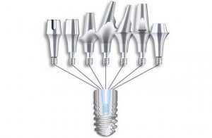 Verschiedenste Zahnimplantate Aufbaumöglichkeiten