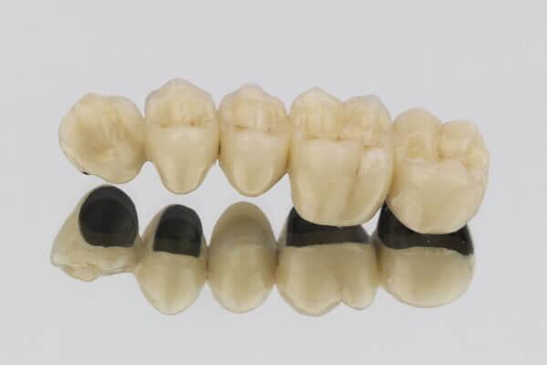 Zahnbrücke aus Titan