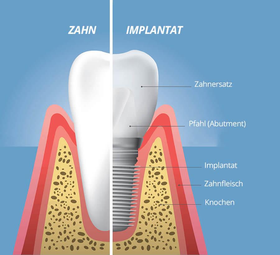 Zahnimplantat Aufgebaut