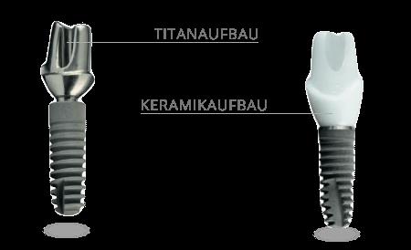 Zahnimplantate Aufbau in Titan oder Zirkon Keramik