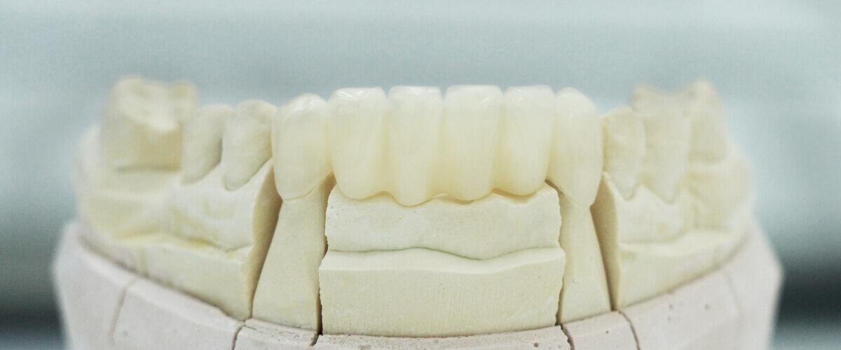 Zahnprovisorium Zahnersatz