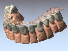 Zahntechnik 3D Plan Software Zahnersatz