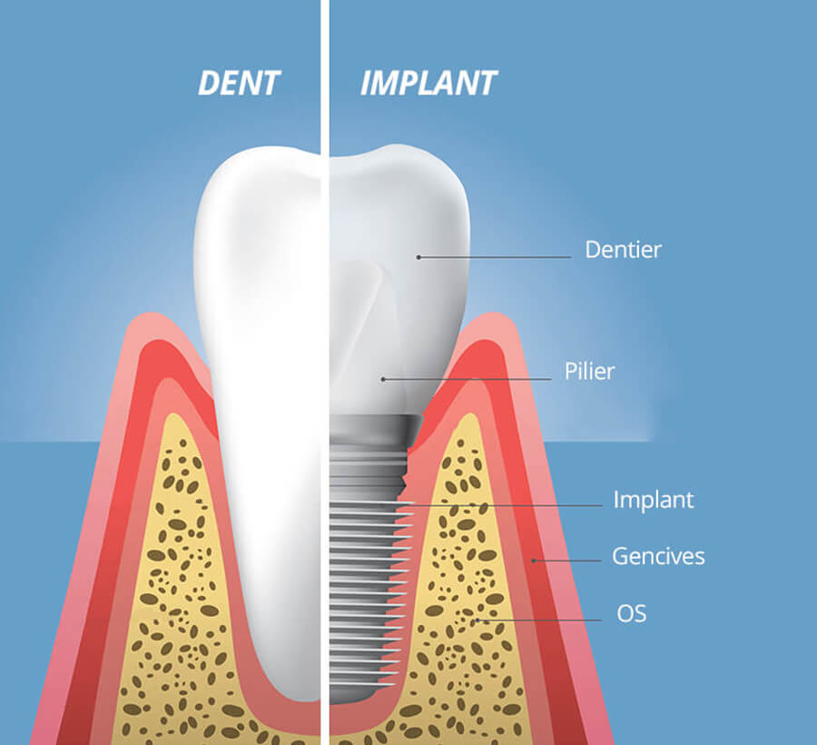 Dent implant structure