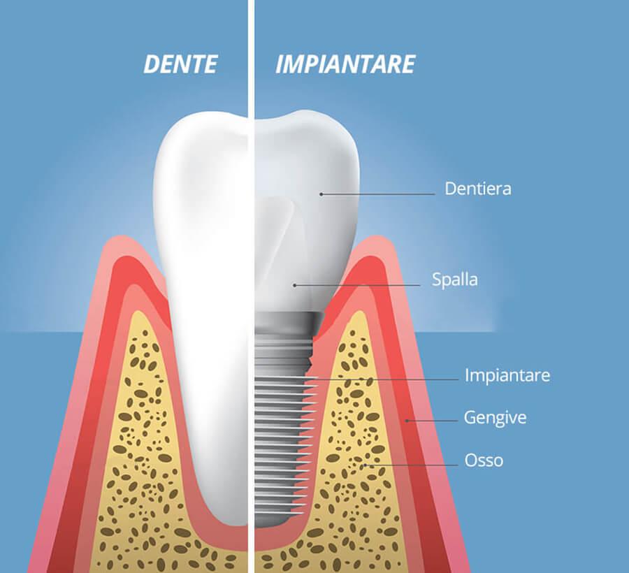 Struttura dell' Impianto dentale