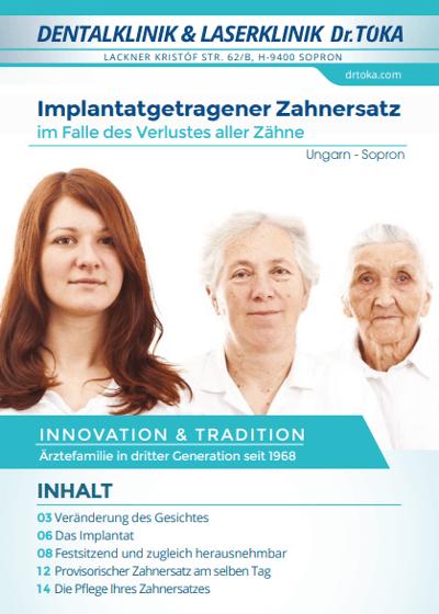 Implantatgetragener Zahnersatz Magazin