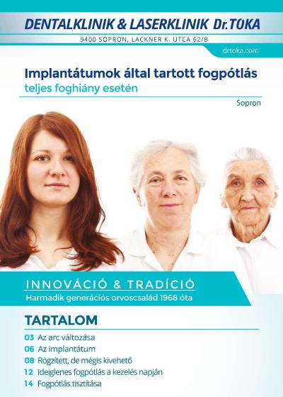 Implantátumok által rögzített fogpótlás füzet